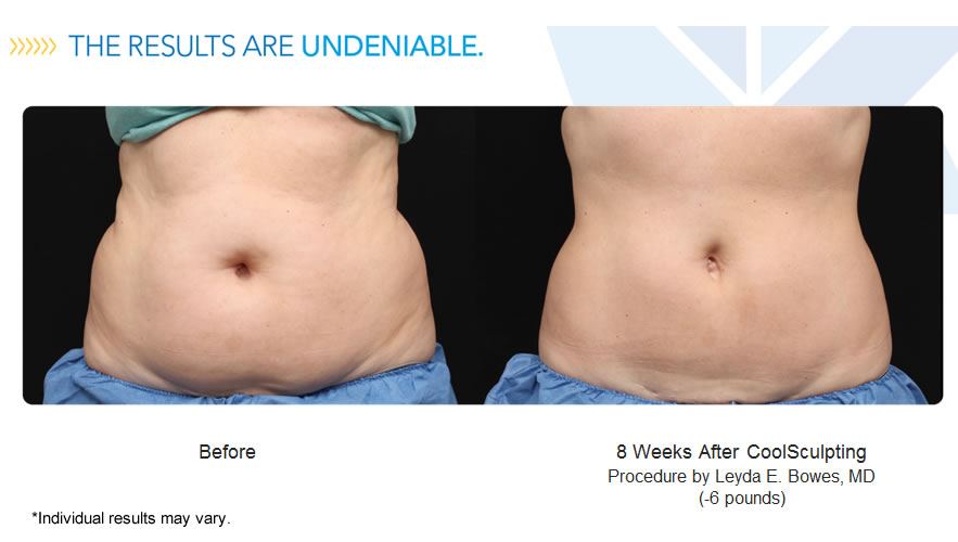 coolsculpt-results-may-vary